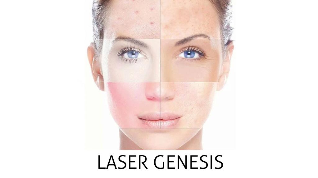 laser genesis v